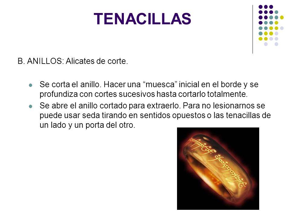 TENACILLAS B. ANILLOS: Alicates de corte. Se corta el anillo. Hacer una muesca inicial en el borde y se profundiza con cortes sucesivos hasta cortarlo