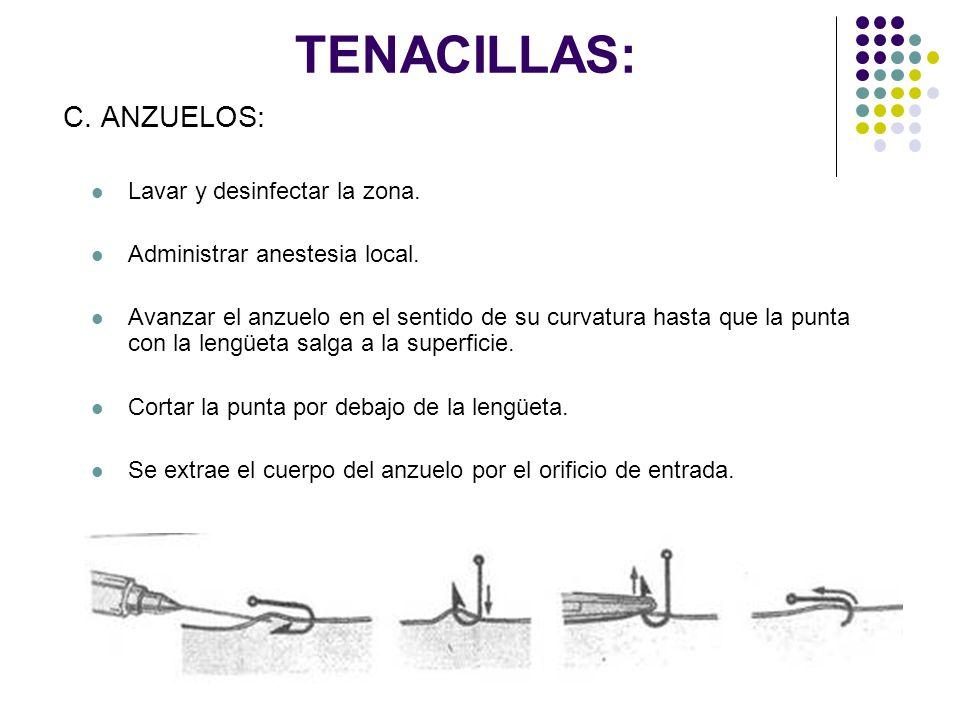 TENACILLAS: C. ANZUELOS: Lavar y desinfectar la zona. Administrar anestesia local. Avanzar el anzuelo en el sentido de su curvatura hasta que la punta