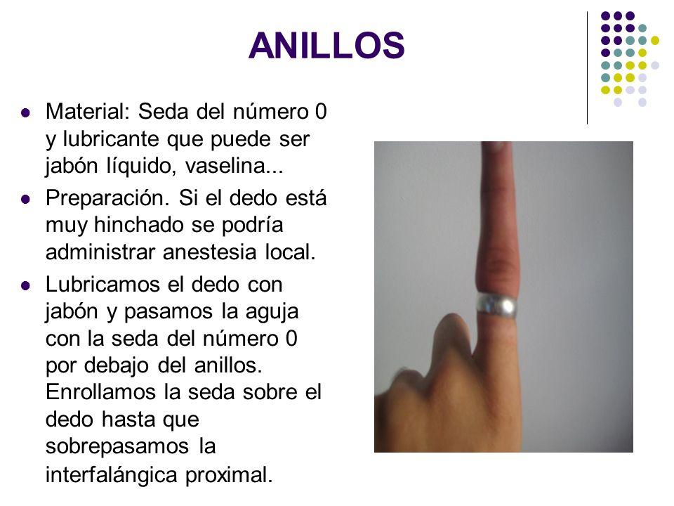 ANILLOS Material: Seda del número 0 y lubricante que puede ser jabón líquido, vaselina... Preparación. Si el dedo está muy hinchado se podría administ