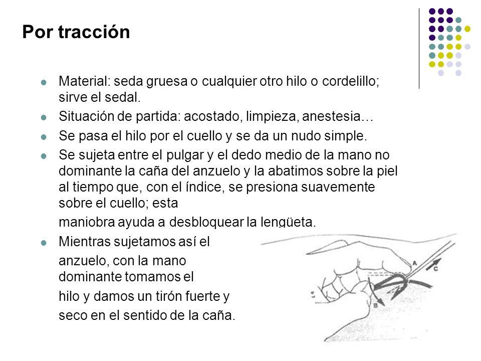 Por tracción Material: seda gruesa o cualquier otro hilo o cordelillo; sirve el sedal. Situación de partida: acostado, limpieza, anestesia… Se pasa el
