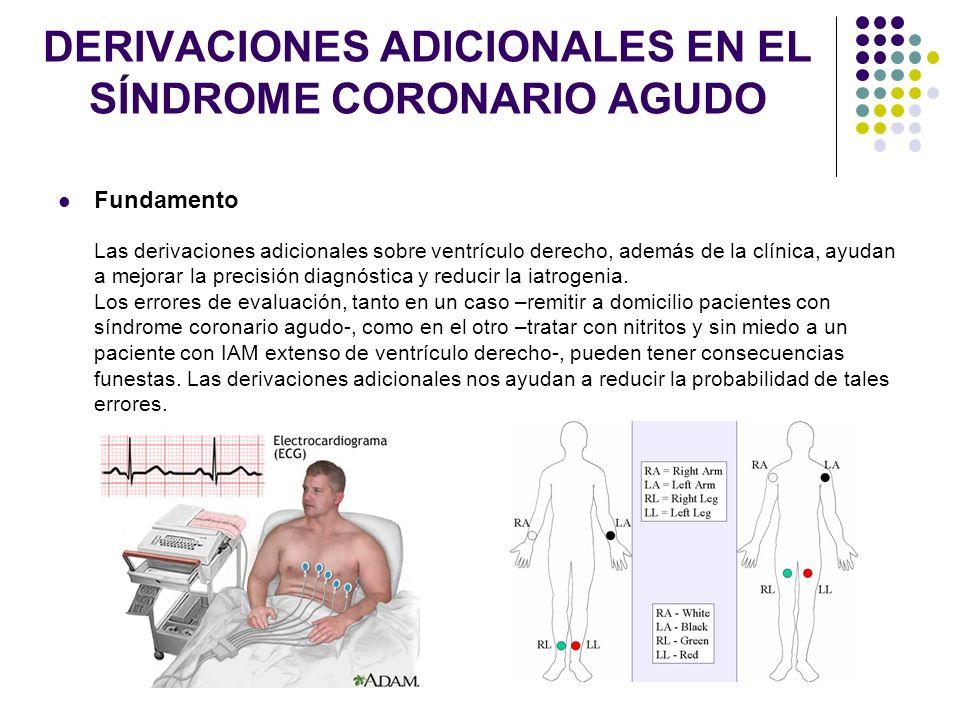 DERIVACIONES ADICIONALES EN EL SÍNDROME CORONARIO AGUDO Fundamento Las derivaciones adicionales sobre ventrículo derecho, además de la clínica, ayudan