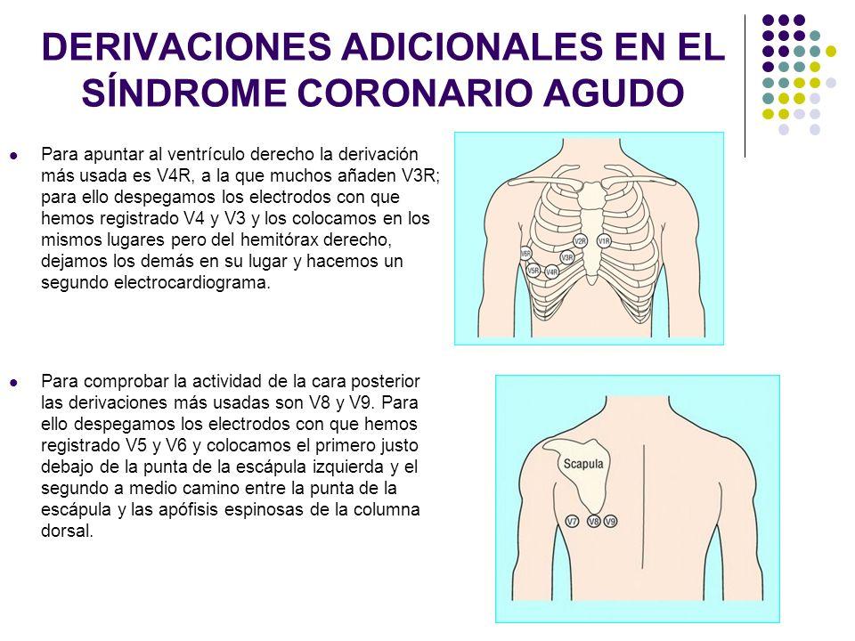 DERIVACIONES ADICIONALES EN EL SÍNDROME CORONARIO AGUDO Para apuntar al ventrículo derecho la derivación más usada es V4R, a la que muchos añaden V3R;