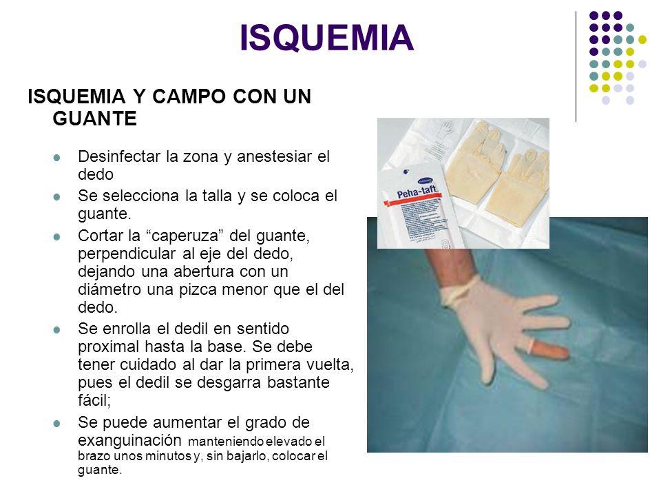 ISQUEMIA ISQUEMIA Y CAMPO CON UN GUANTE Desinfectar la zona y anestesiar el dedo Se selecciona la talla y se coloca el guante. Cortar la caperuza del