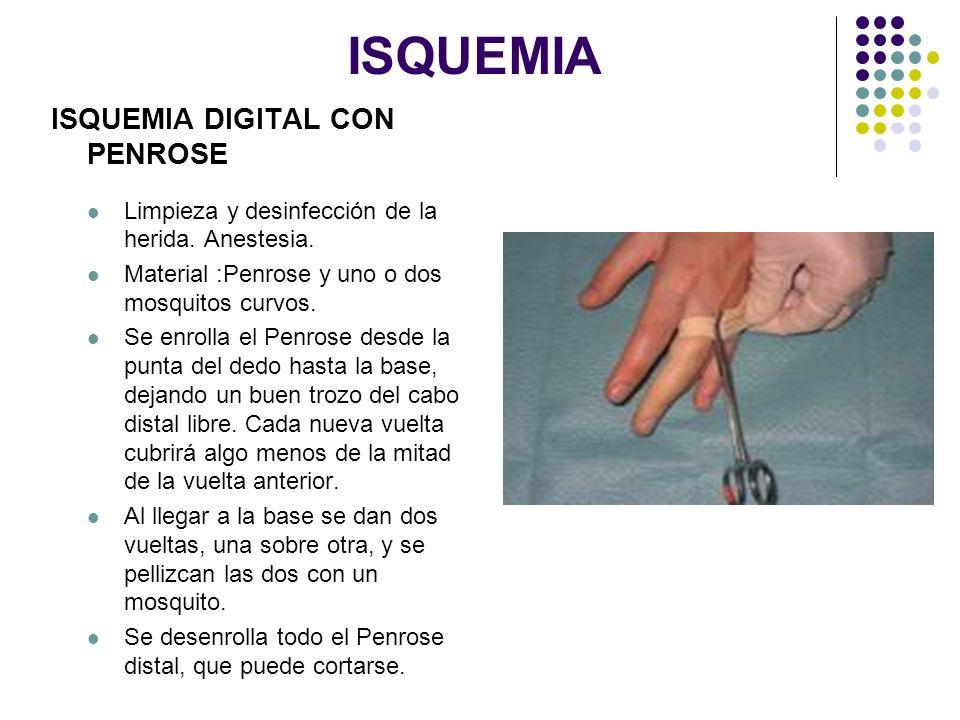 ISQUEMIA ISQUEMIA DIGITAL CON PENROSE Limpieza y desinfección de la herida. Anestesia. Material :Penrose y uno o dos mosquitos curvos. Se enrolla el P