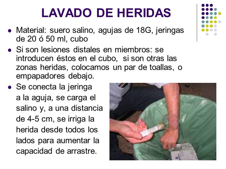 LAVADO DE HERIDAS Material: suero salino, agujas de 18G, jeringas de 20 ó 50 ml, cubo Si son lesiones distales en miembros: se introducen éstos en el