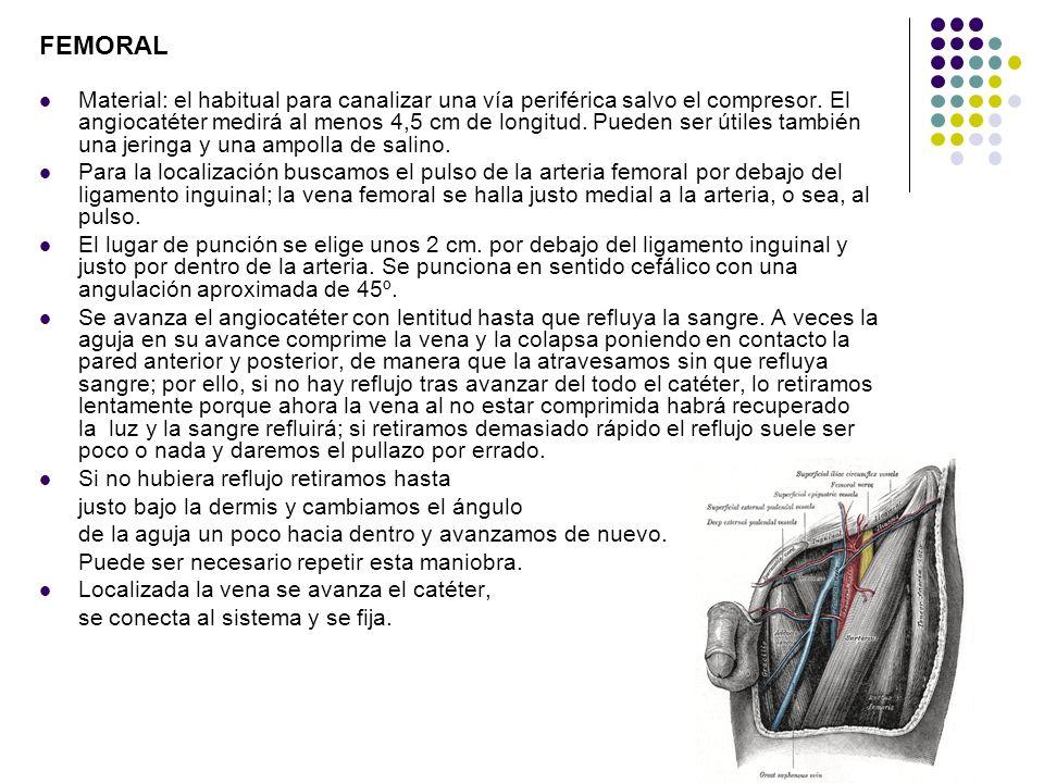 FEMORAL Material: el habitual para canalizar una vía periférica salvo el compresor. El angiocatéter medirá al menos 4,5 cm de longitud. Pueden ser úti