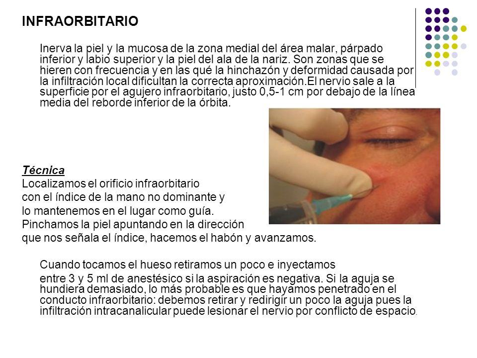INFRAORBITARIO Inerva la piel y la mucosa de la zona medial del área malar, párpado inferior y labio superior y la piel del ala de la nariz. Son zonas
