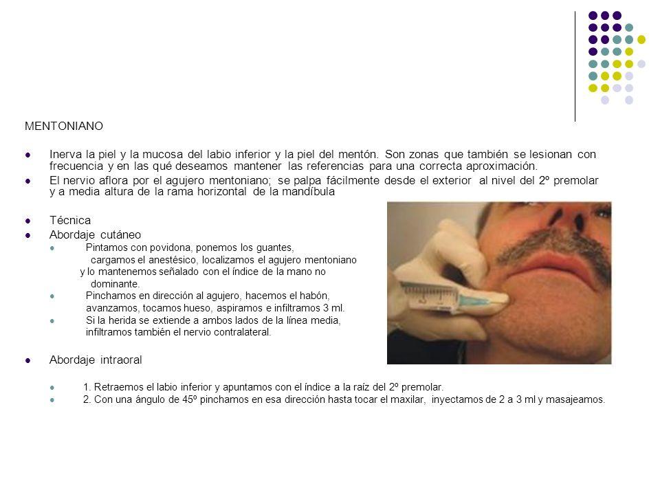 MENTONIANO Inerva la piel y la mucosa del labio inferior y la piel del mentón. Son zonas que también se lesionan con frecuencia y en las qué deseamos