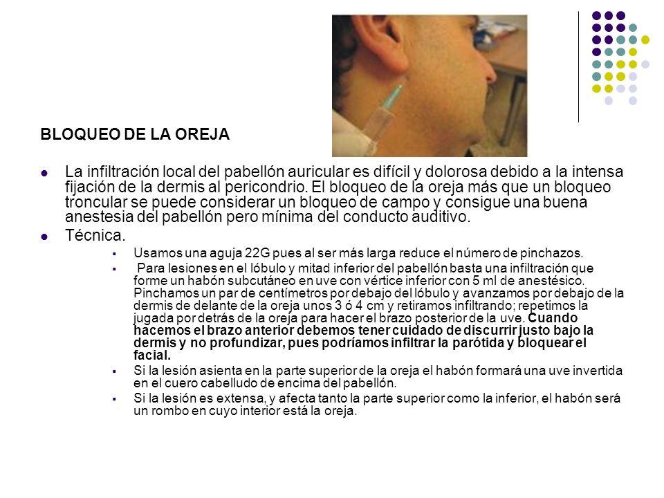 BLOQUEO DE LA OREJA La infiltración local del pabellón auricular es difícil y dolorosa debido a la intensa fijación de la dermis al pericondrio. El bl