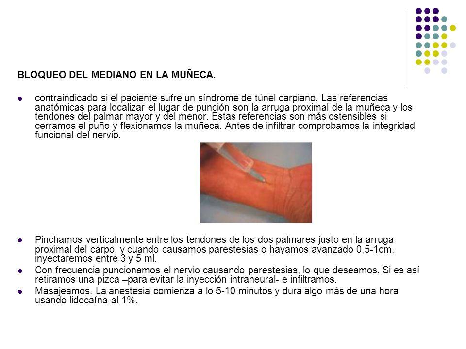 BLOQUEO DEL MEDIANO EN LA MUÑECA. contraindicado si el paciente sufre un síndrome de túnel carpiano. Las referencias anatómicas para localizar el luga