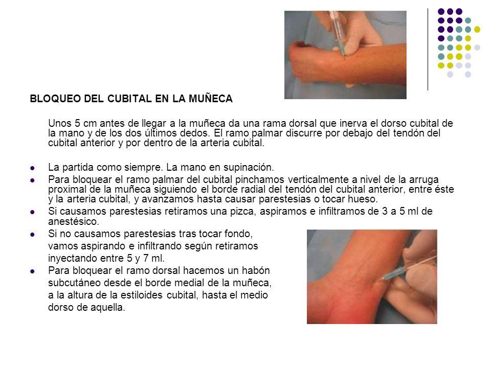 BLOQUEO DEL CUBITAL EN LA MUÑECA Unos 5 cm antes de llegar a la muñeca da una rama dorsal que inerva el dorso cubital de la mano y de los dos últimos