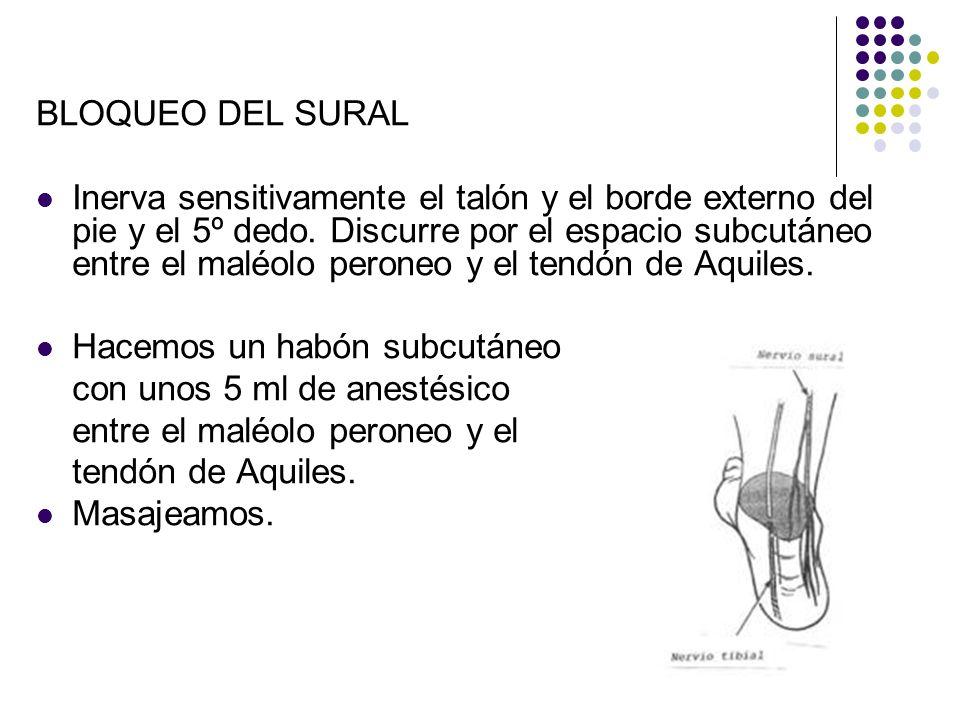 BLOQUEO DEL SURAL Inerva sensitivamente el talón y el borde externo del pie y el 5º dedo. Discurre por el espacio subcutáneo entre el maléolo peroneo