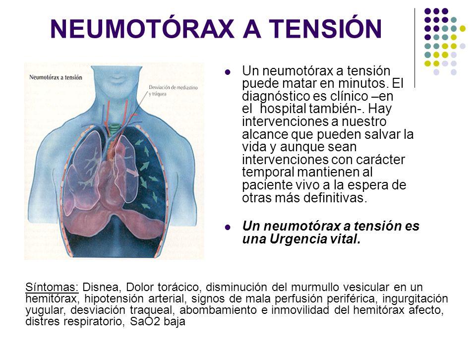NEUMOTÓRAX A TENSIÓN Un neumotórax a tensión puede matar en minutos. El diagnóstico es clínico –en el hospital también-. Hay intervenciones a nuestro
