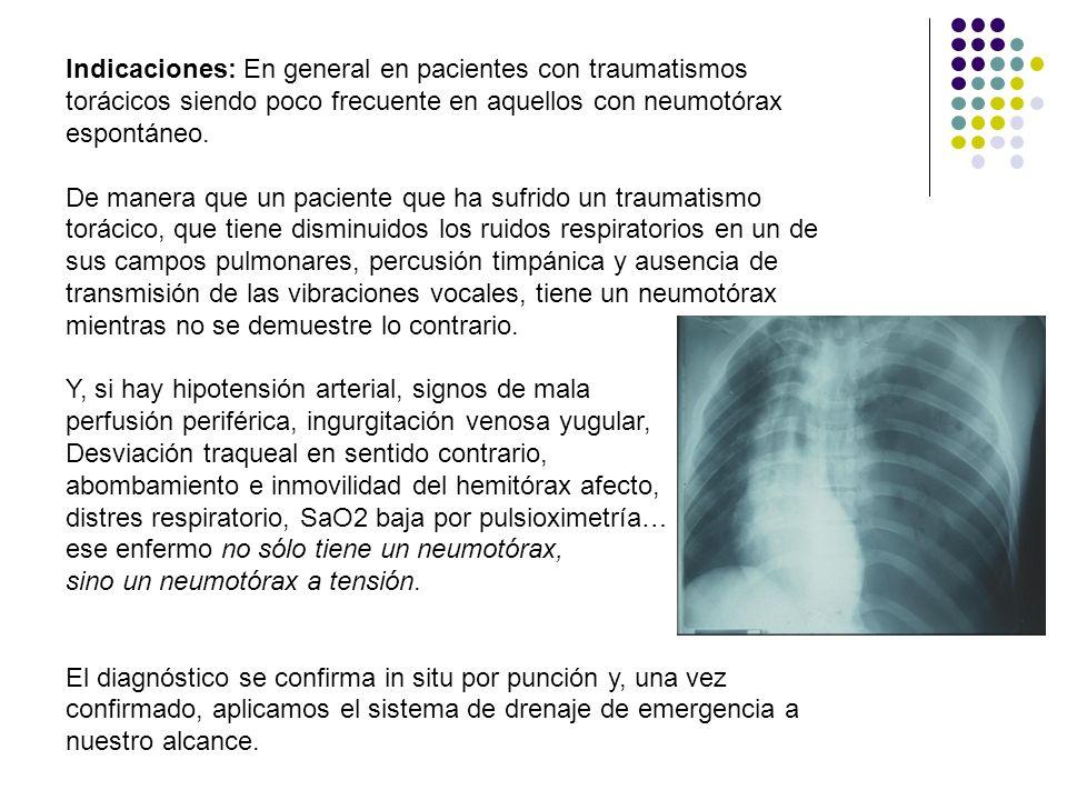 Indicaciones: En general en pacientes con traumatismos torácicos siendo poco frecuente en aquellos con neumotórax espontáneo. De manera que un pacient