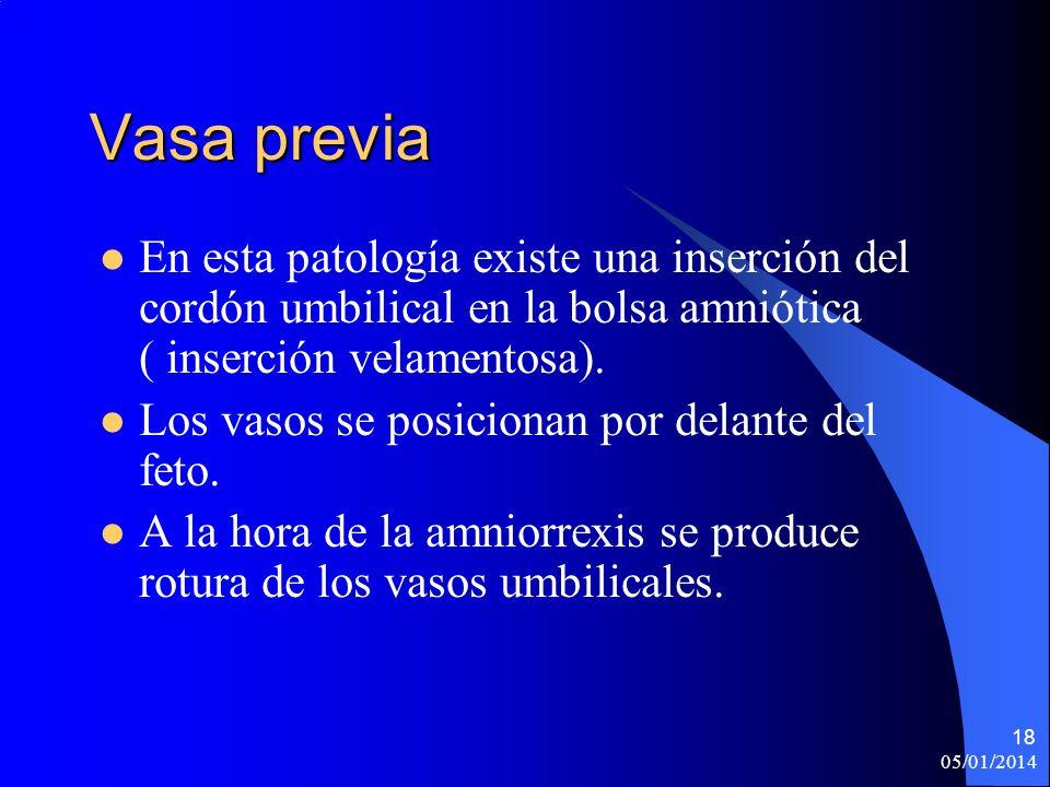 Vasa previa En esta patología existe una inserción del cordón umbilical en la bolsa amniótica ( inserción velamentosa). Los vasos se posicionan por de