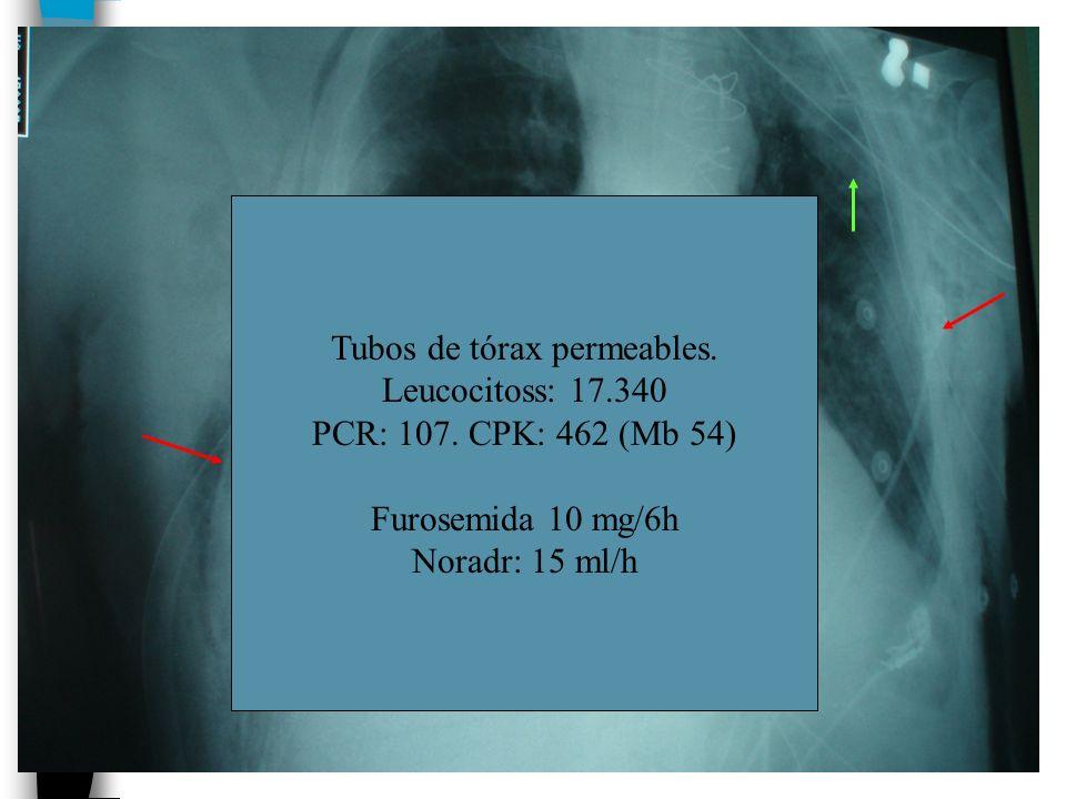 Tubos de tórax permeables. Leucocitoss: 17.340 PCR: 107. CPK: 462 (Mb 54) Furosemida 10 mg/6h Noradr: 15 ml/h