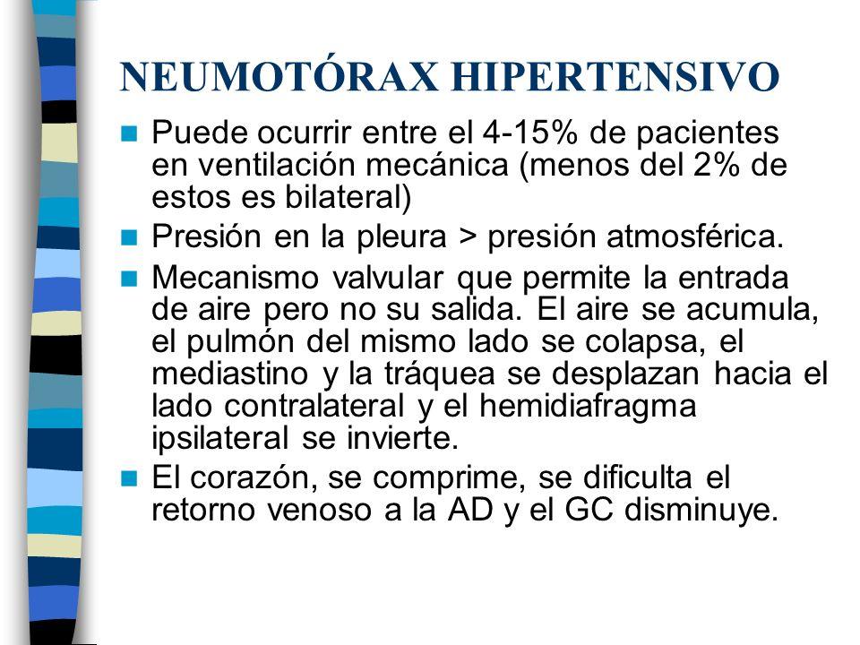 NEUMOTÓRAX HIPERTENSIVO Puede ocurrir entre el 4-15% de pacientes en ventilación mecánica (menos del 2% de estos es bilateral) Presión en la pleura >