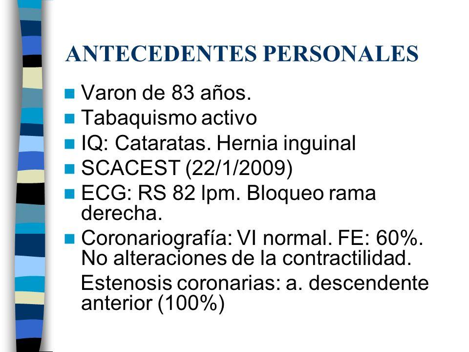 ANTECEDENTES PERSONALES Varon de 83 años. Tabaquismo activo IQ: Cataratas. Hernia inguinal SCACEST (22/1/2009) ECG: RS 82 lpm. Bloqueo rama derecha. C