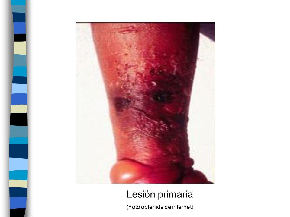 Lesión primaria (Foto obtenida de internet)
