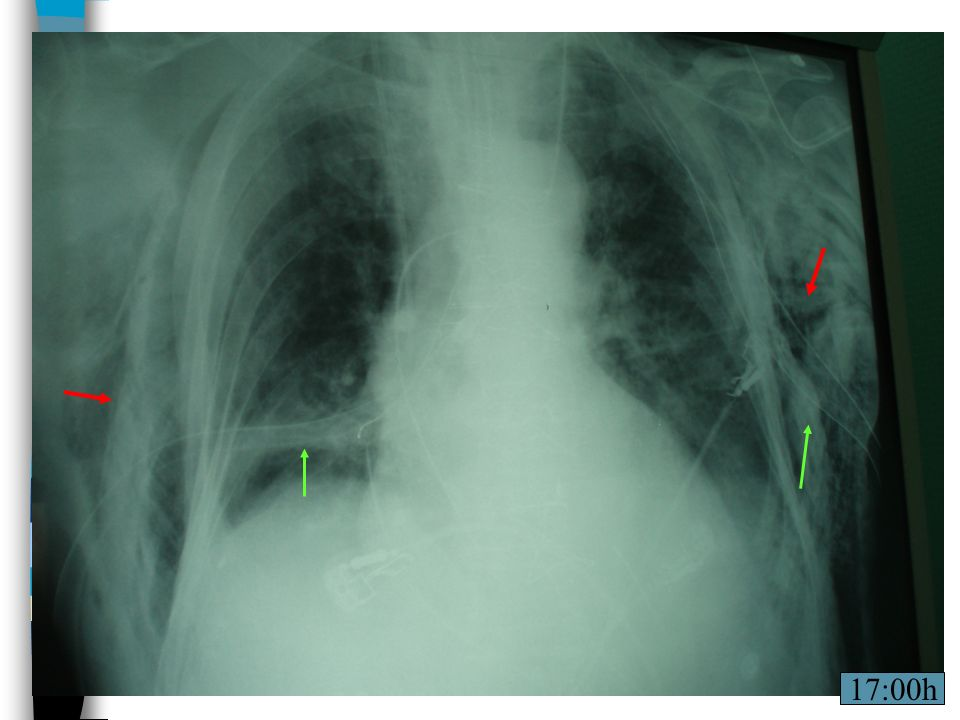 Tubos de tórax permeables.Leucocitoss: 17.340 PCR: 107.