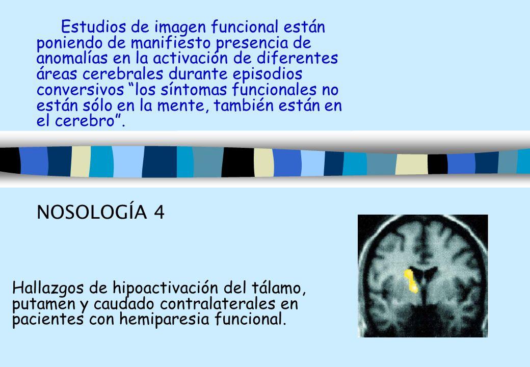 Estudios de imagen funcional están poniendo de manifiesto presencia de anomalías en la activación de diferentes áreas cerebrales durante episodios con