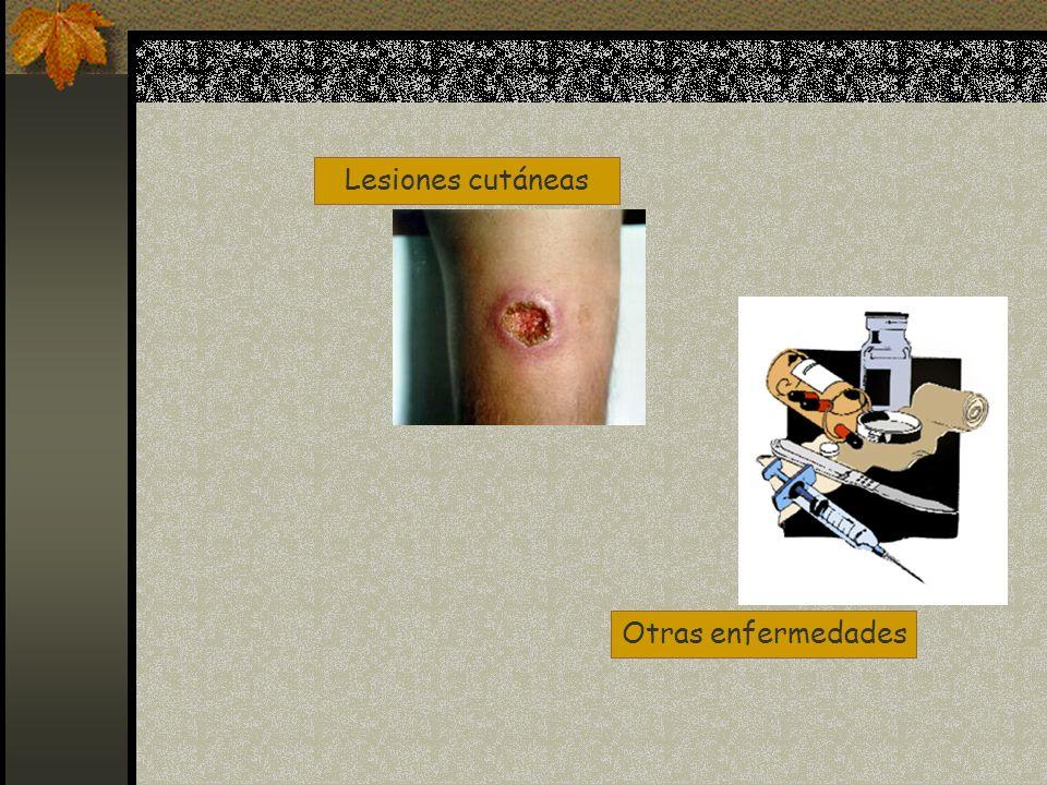 Lesiones cutáneas Otras enfermedades