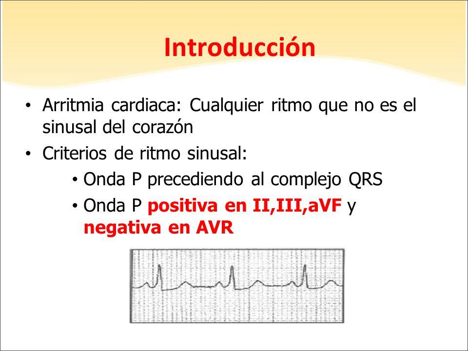 Introducción Arritmia cardiaca: Cualquier ritmo que no es el sinusal del corazón Criterios de ritmo sinusal: Onda P precediendo al complejo QRS Onda P