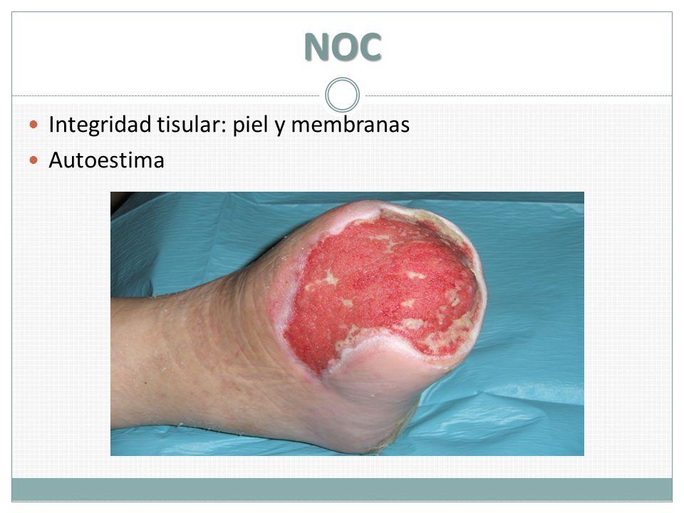 NOC Integridad tisular: piel y membranas Autoestima