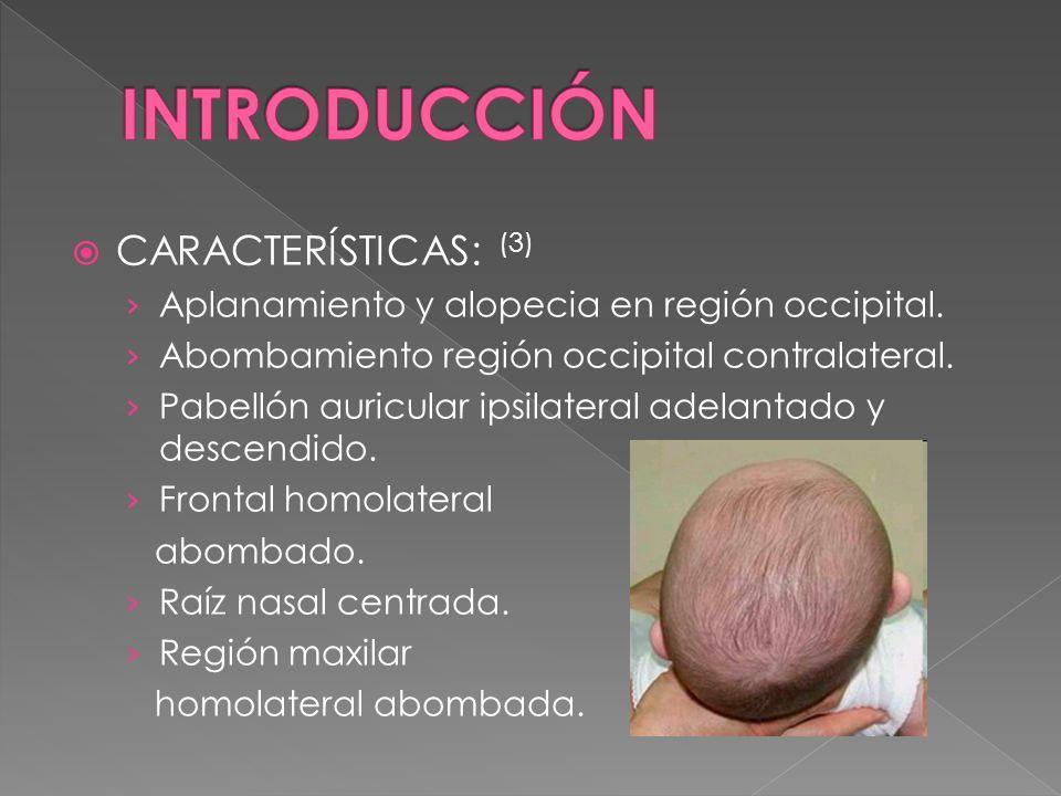 CARACTERÍSTICAS: (3) Aplanamiento y alopecia en región occipital. Abombamiento región occipital contralateral. Pabellón auricular ipsilateral adelanta