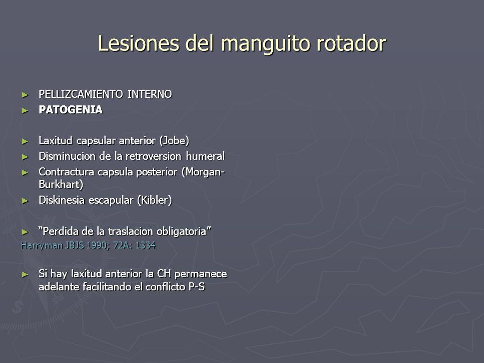 Lesiones del manguito rotador PELLIZCAMIENTO INTERNO PELLIZCAMIENTO INTERNO PATOGENIA PATOGENIA Laxitud capsular anterior (Jobe) Laxitud capsular ante