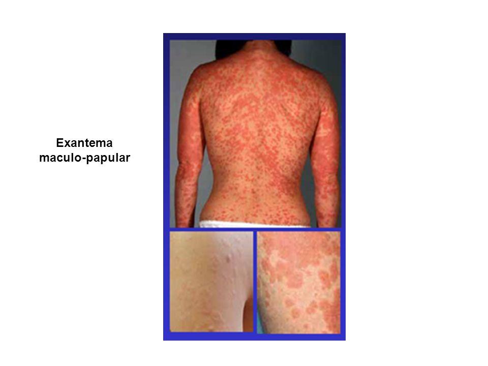Exantema maculo-papular