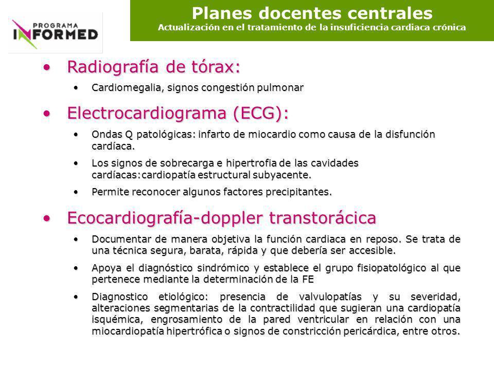 Planes docentes centrales Actualización en el tratamiento de la insuficiencia cardiaca crónica Radiografía de tórax:Radiografía de tórax: Cardiomegali