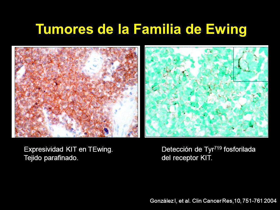 Expresividad KIT en TEwing. Tejido parafinado. Detección de Tyr 719 fosforilada del receptor KIT. González I, et al. Clin Cancer Res,10, 751-761 2004