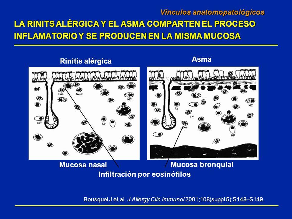 Vínculos anatomopatológicos LA RINITS ALÉRGICA Y EL ASMA COMPARTEN EL PROCESO INFLAMATORIO Y SE PRODUCEN EN LA MISMA MUCOSA Bousquet J et al. J Allerg