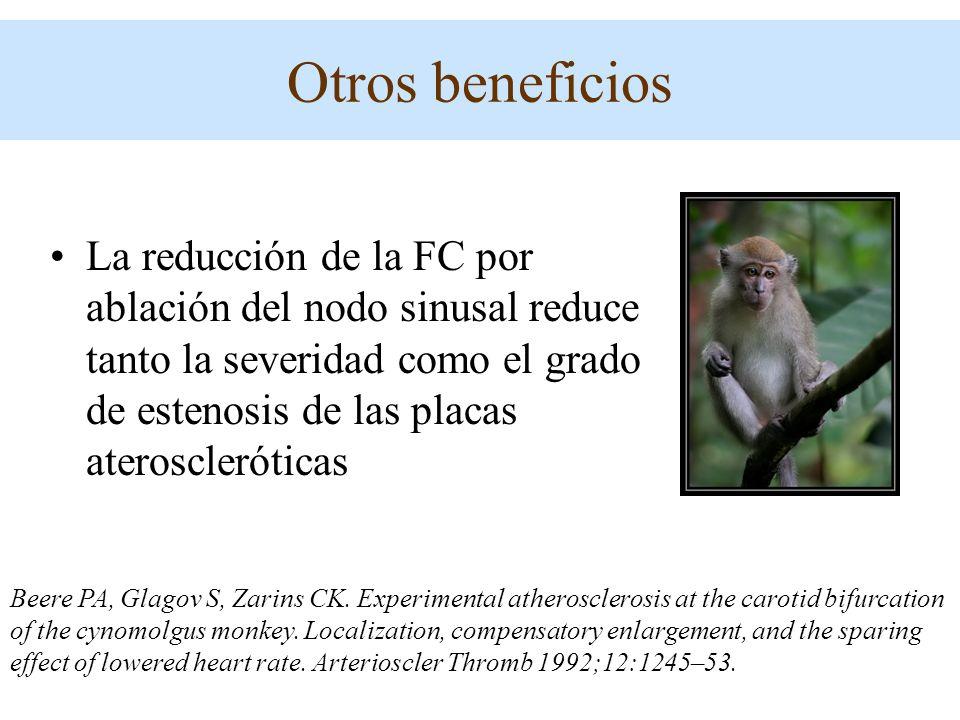 La reducción de la FC por ablación del nodo sinusal reduce tanto la severidad como el grado de estenosis de las placas ateroscleróticas Beere PA, Glag
