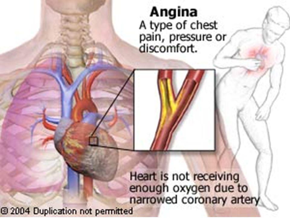 Frecuencia Cardíaca: ¿Factor pronóstico.