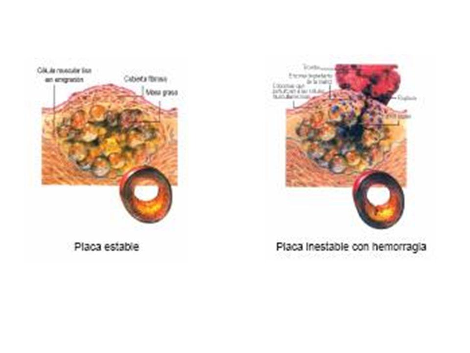 Se asocia a la progresión de la aterosclerosis coronaria...y a la probabilidad de disrrupción de una placa preexistente.