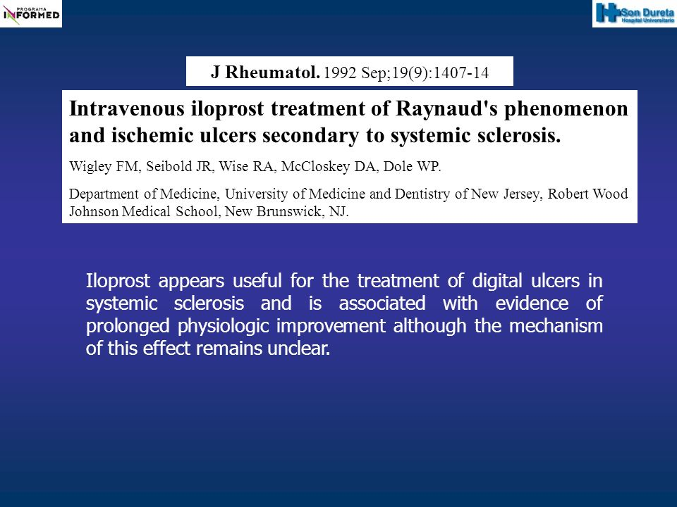 J Rheumatol. 1992 Sep;19(9):1407-14 Intravenous iloprost treatment of Raynaud's phenomenon and ischemic ulcers secondary to systemic sclerosis. Wigley