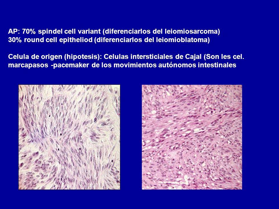AP: 70% spindel cell variant (diferenciarlos del leiomiosarcoma) 30% round cell epitheliod (diferenciarlos del leiomioblatoma) Celula de origen (hipot