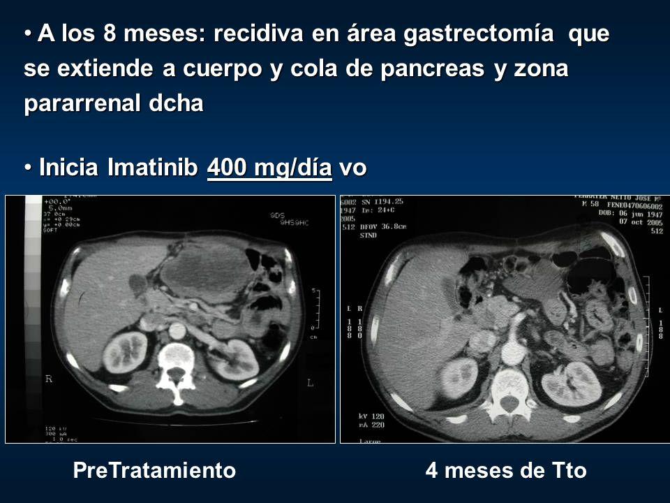 A los 8 meses: recidiva en área gastrectomía que se extiende a cuerpo y cola de pancreas y zona pararrenal dcha A los 8 meses: recidiva en área gastre