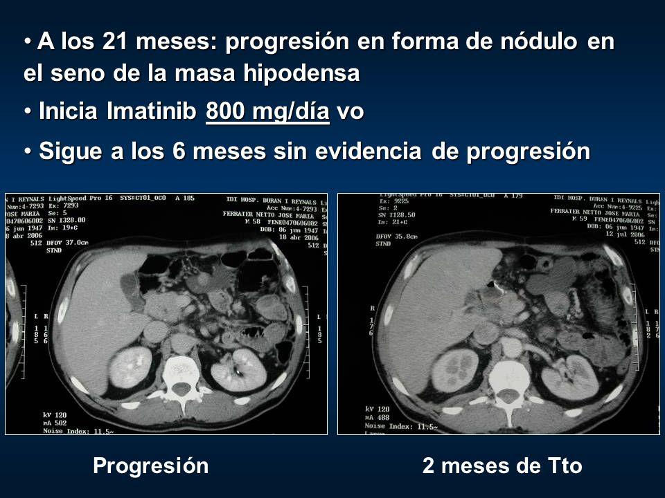 A los 21 meses: progresión en forma de nódulo en el seno de la masa hipodensa A los 21 meses: progresión en forma de nódulo en el seno de la masa hipo