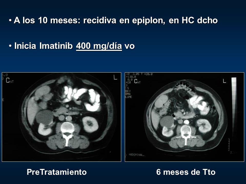 A los 10 meses: recidiva en epiplon, en HC dcho A los 10 meses: recidiva en epiplon, en HC dcho Inicia Imatinib 400 mg/día vo Inicia Imatinib 400 mg/d