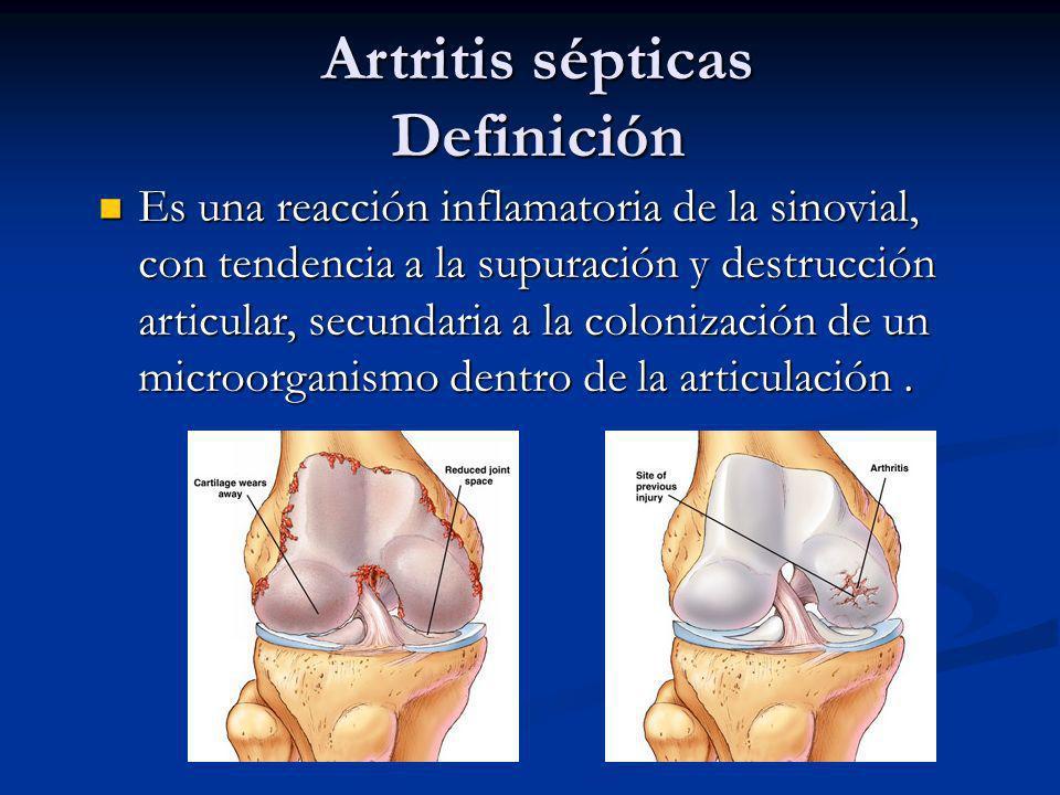Artritis sépticas Definición Es una reacción inflamatoria de la sinovial, con tendencia a la supuración y destrucción articular, secundaria a la colon