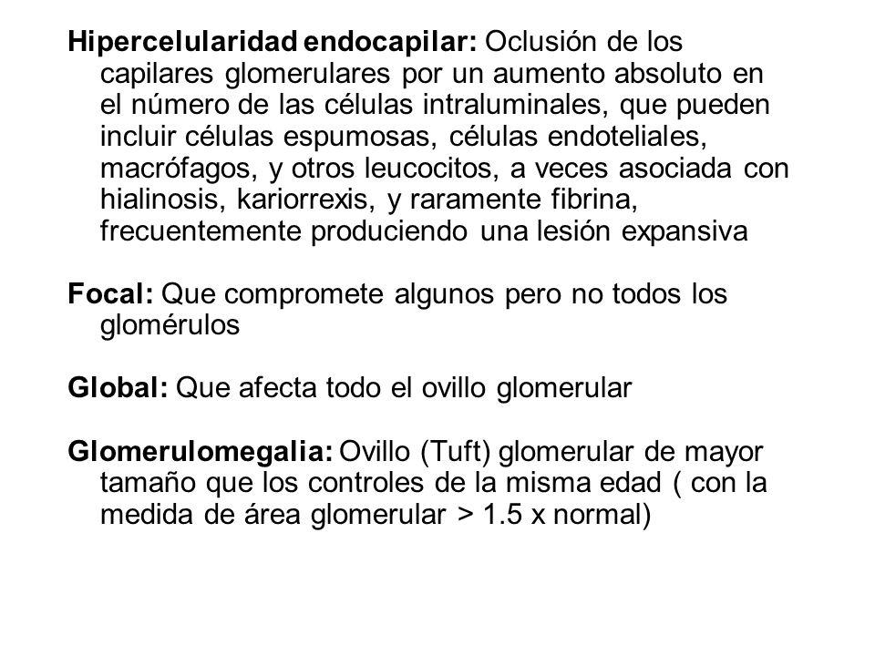 Hipercelularidad endocapilar: Oclusión de los capilares glomerulares por un aumento absoluto en el número de las células intraluminales, que pueden in