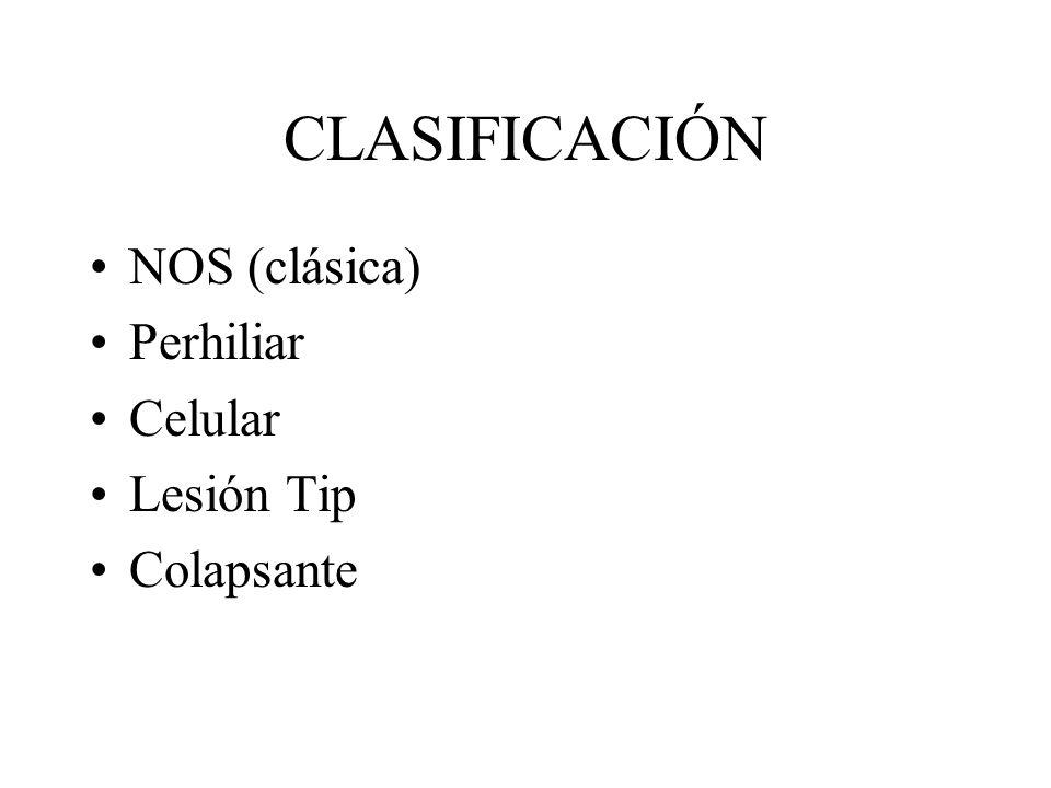 CLASIFICACIÓN NOS (clásica) Perhiliar Celular Lesión Tip Colapsante
