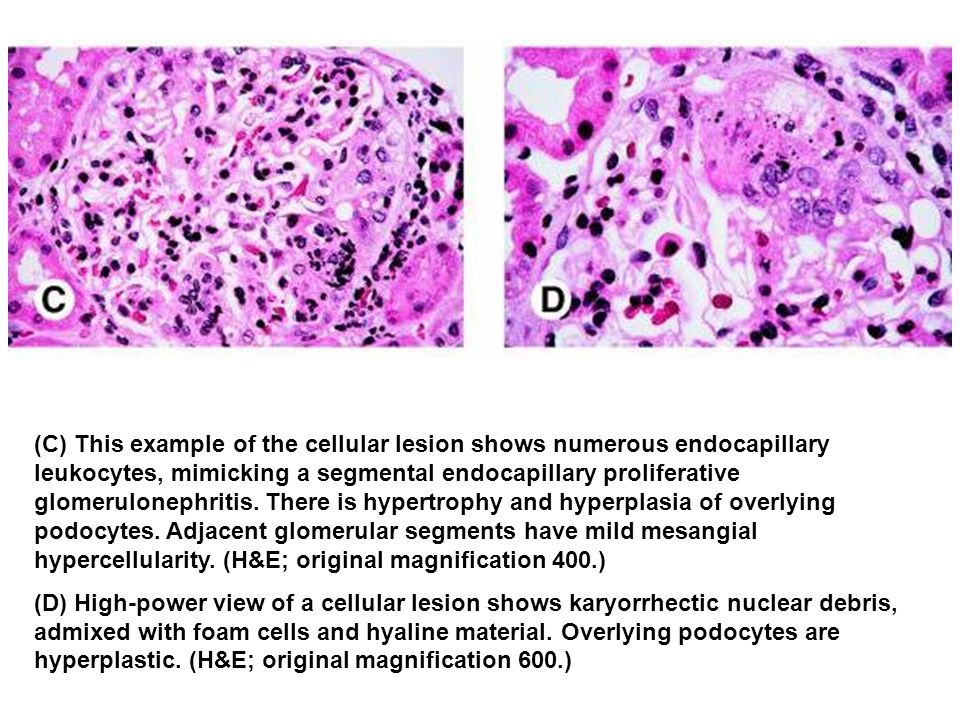 (C) This example of the cellular lesion shows numerous endocapillary leukocytes, mimicking a segmental endocapillary proliferative glomerulonephritis.