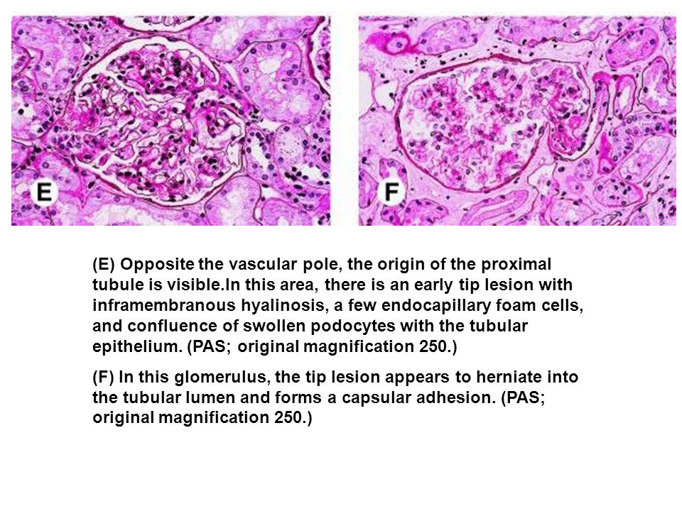 (E) Opposite the vascular pole, the origin of the proximal tubule is visible.In this area, there is an early tip lesion with inframembranous hyalinosi