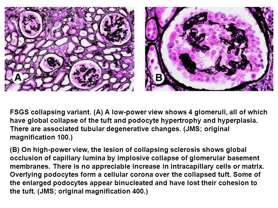 FSGS collapsing variant. (A) A low-power view shows 4 glomeruli, all of which have global collapse of the tuft and podocyte hypertrophy and hyperplasi