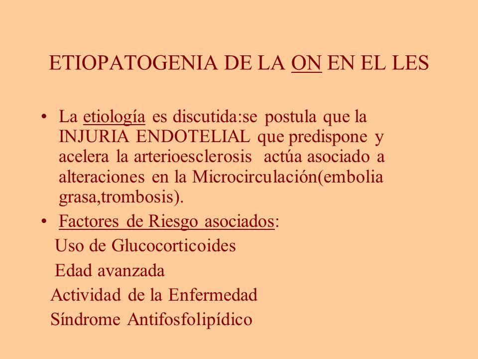 ETIOPATOGENIA DE LA ON EN EL LES La etiología es discutida:se postula que la INJURIA ENDOTELIAL que predispone y acelera la arterioesclerosis actúa as