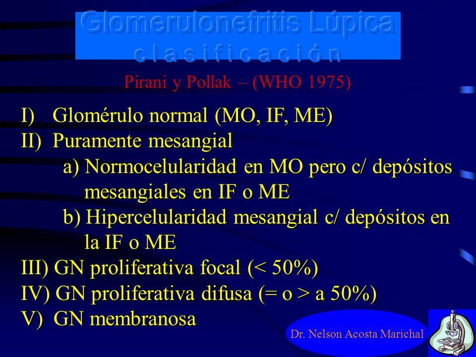 Glomerulonefritis Lúpica c l a s i f i c a c i ó n Dr. Nelson Acosta Marichal 1964 – GNFS, GND y GN membranosa 1970 – Lesión mesangial 1974 – 1ª clasi